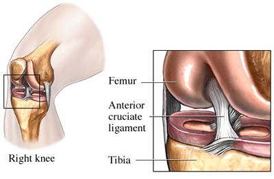 anterior_cruciate_labeled_400