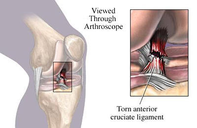 torn_acl_400